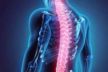 Terapia kręgosłupa